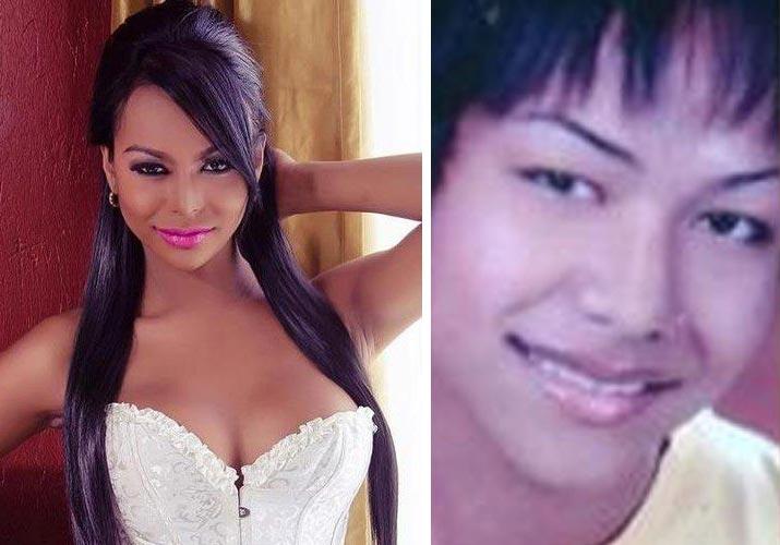 Fiona Solis antes e depois