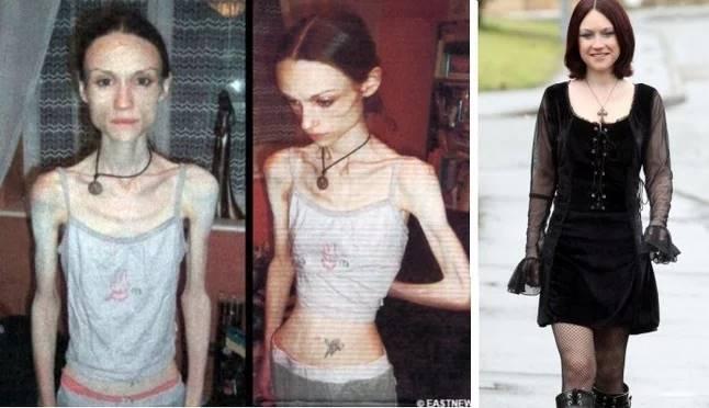 anorexia-vitoria5